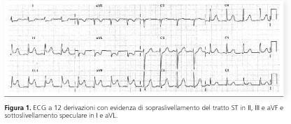 Giornale italiano di cardiologia transitorio for Resoconto tratto da articoli di giornali